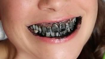 Er Pluridecorato e Maria dai denti marci